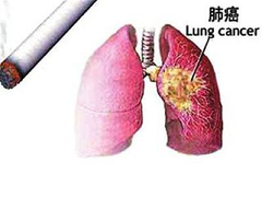2017中国肺癌脑转移诊治共识要点(二)