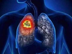肺癌晚期能活多久的主要影响因素